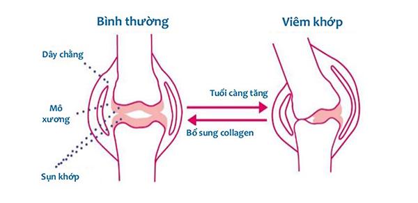 tim-hieu-ve-collagen-type-2